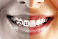 invisalign Halton, Burlington, Mississauga, Oakville